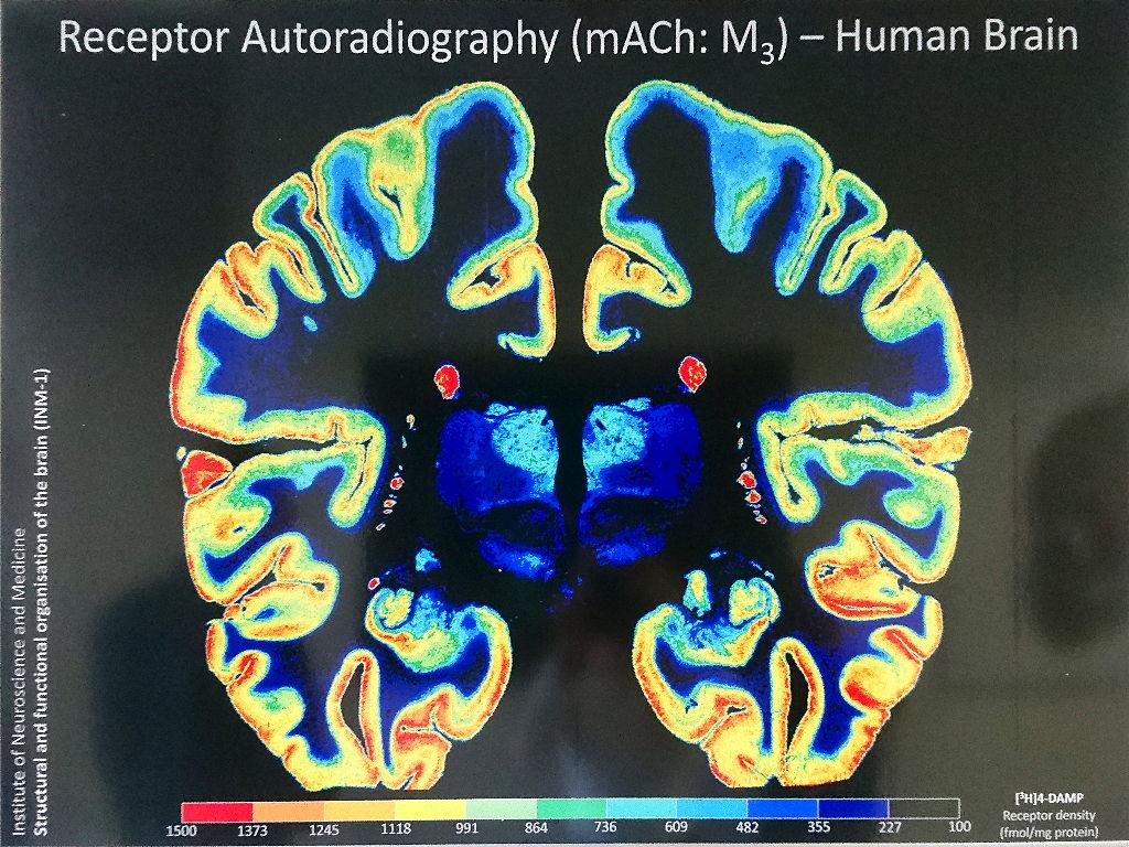 Gehirnschnitte einer Rezeptor-Autoradiographie