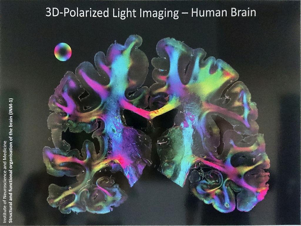Gehirnschnitte eines 3D-Polarized Light Imaging