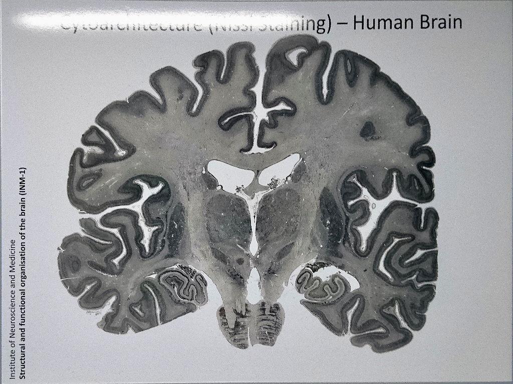 Gehirnschnitte einer Silbernitrat-Färbung