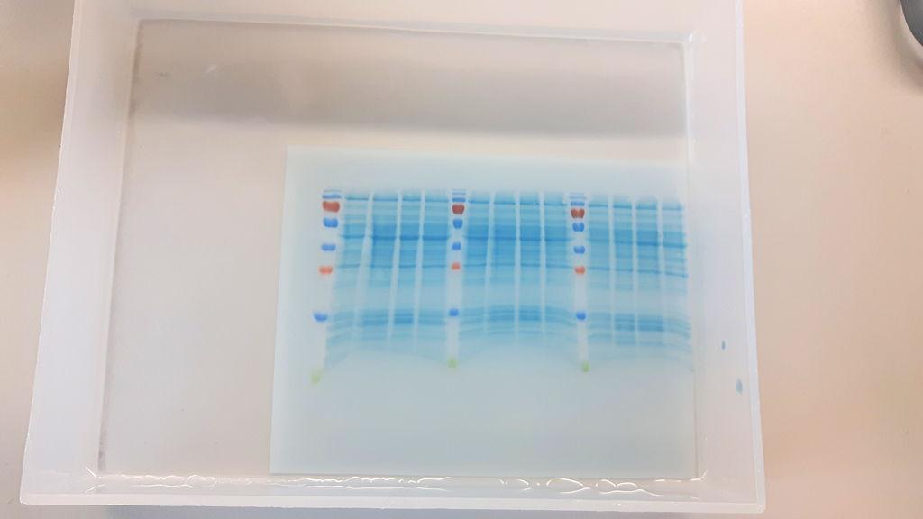Proteinbanden auf einer Trägermembran